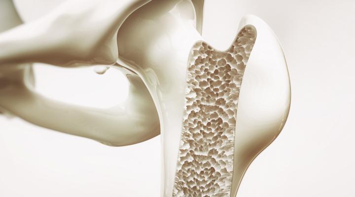 zwapnienie kości