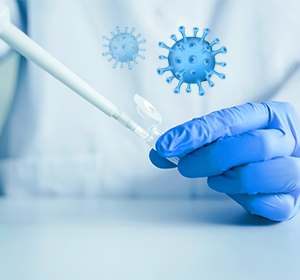 SARS-CoV-2 metodą real time RT-PCR